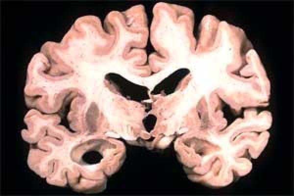 Quelle: Folie: R. Nitsch Alzheimer-Hirn mit geschrumpften Gedächtniszentren