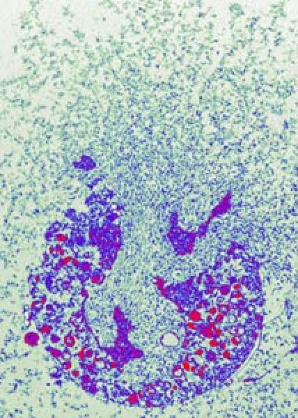 Quelle: Dr. Volker Brinkmann/mpg Abb. 2 Ein neutrophiler Granulozyt stirbt und stößt dabei NETs aus. Bild: Dr. Volker Brinkmann, Max-Planck-Institut für Infektionsbiologie
