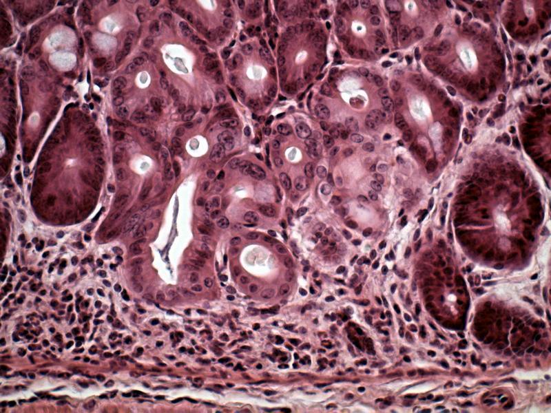 Quelle: GBF Blick durch das Mikroskop: Querschnitt durch das Gewebe eines Mäusedarms. Die deutlich erhöhte Anzahl der Immunzellen zeigt eine Erkrankung an. Die Symptome ähneln den chronisch entzündlichen Darmerkrankungen beim Menschen, zu denen Morbus Crohn gehört.