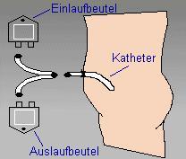 Quelle: Dialyse-Net.de Bei der Bauchfelldialyse wird Dialyseflüssigkeit über einen Katheter in den Bauchraum eingelassen. Das Bauchfell filtert die Giftstoffe aus dem Blut und setzt sie in die Flüssigkeit ab, die dann über den Katheter wieder abgelassen wird.