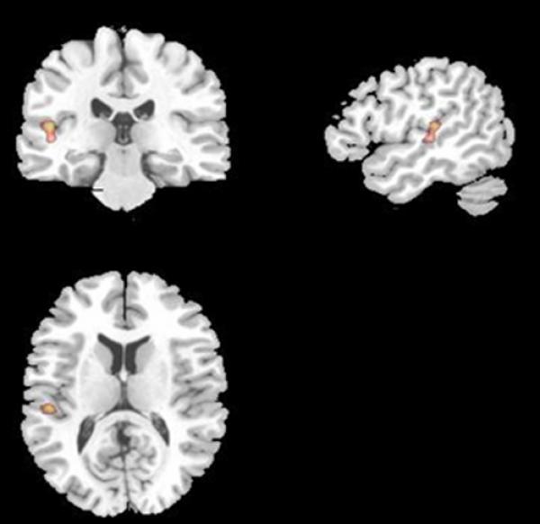 Quelle: Dr. Boris Suchan u.a., RUB Neuropsychologie Typisches Aktivierungsmuster während des Gedächtnistests.