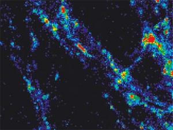 Quelle: Bild: mpg.de Sonde zeigt, wie schnell Proteine recycelt werden