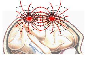 Quelle: mpg Biolo. Kybernetik Abb.: Der spezifische Widerstand der grauen Substanz ist frequenzunabhängig. Bild: Max-Planck-Institut für biologische Kybernetik, Tübingen