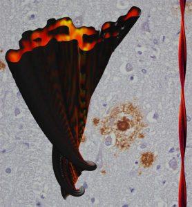 Quelle: Sachse, Fändrich & Grigorieff Abb.: Aufsicht auf den Querschnitt einer Alzheimer Amyloidfibrille (rot). Im Hintergrund: Amyloidablagerungen (braun) in Hirngewebe eines Alzheimerpatienten. Bild: Sachse, Fändrich & Grigorieff