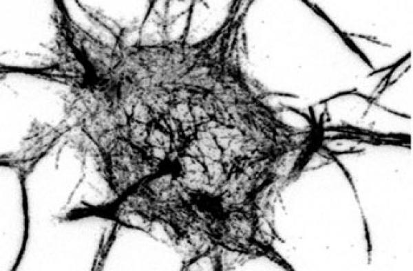 Quelle: Stiess und Bradke Lange wurde angenommen, dass Mikrotubuli nur von einem zentralen Punkt, dem Zentrosom, entstehen können. Das Bild zeigt, dass sich in ausgereiften Nervenzellen mit inaktivem Zentrosom die Mikrotubuli (dunkle Striche) auch in ganz anderen Bereichen einer Nervenzelle bilden. Bild: Max-Planck-Institut für Neurobiologie / Stiess & Bradke