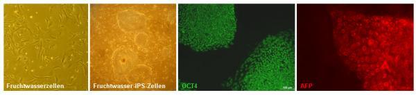 Quelle: Max-Planck-Institut für molekulare Genetik, Berlin Humane Fruchtwasserzellen vor der Reprogrammierung (links) zu Fruchtwasser-iPS-Zellen (zweites Bild von links) sind von embryonalen Stammzellen äußerlich nicht zu unterscheiden. Fruchtwasser-iPS-Zellen produzieren OCT4 (grün), einen der wichtigsten Markerproteine für Stammzellen. Ausgehend von diesem embryonalen Stammzellstadium können die Fruchtwasser-iPS-Zellen unter anderem leberzellähnliche Zellen bilden (rechts). Sie produzieren das Plasmaprotein Alpha-Fetoprotein (rot). Bild: Max-Planck-Institut für molekulare Genetik, Berlin